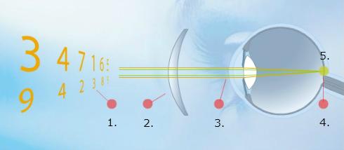 Korekcija astigmatizma