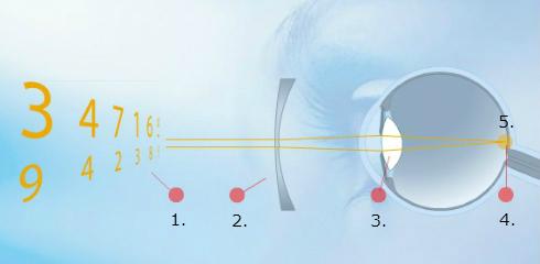 Korekcija miopije ali kratkovidnosti