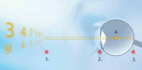 Miopija ali kratkovidnost