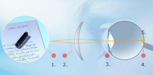 Korekcija presbiopije ali starostne slabovidnosti